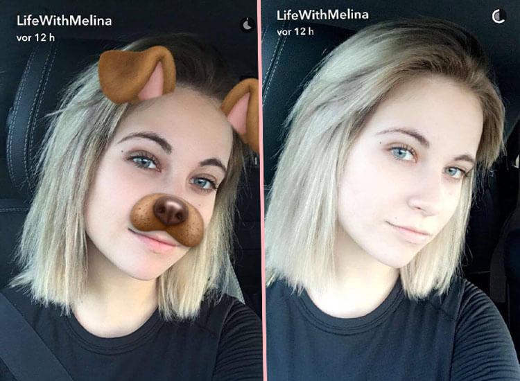 Melina Sophie Hat Eine Glatze Starzip